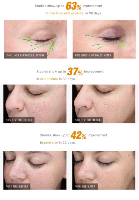 AntiAging Collagen Induction CIT Facial